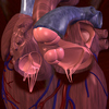 Mitral_regurgitation