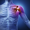 Shoulder_injuries_and_disorders