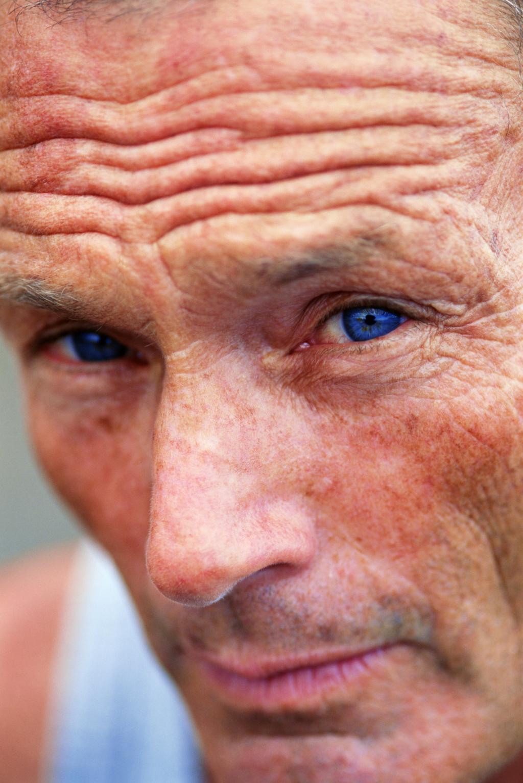 Sun Damage Answers On Healthtap