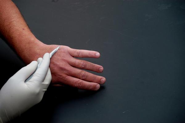 Verruca Finger