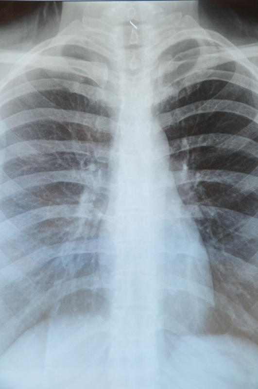 Scar In Lungs