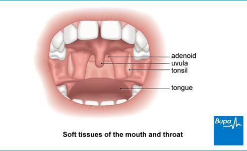 fungus on tonsils