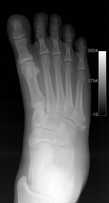 Broken Bone Top Of Foot 93