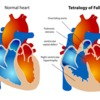 Tetralogy_of_fallot