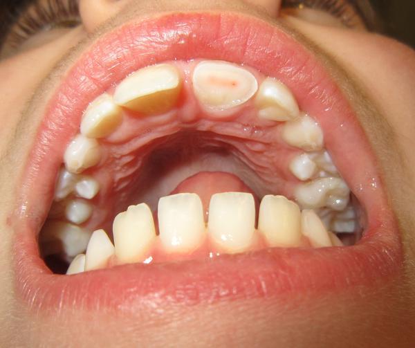 Cut Inside Mouth 6