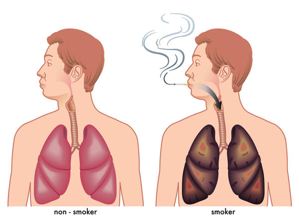 emphysema pictures