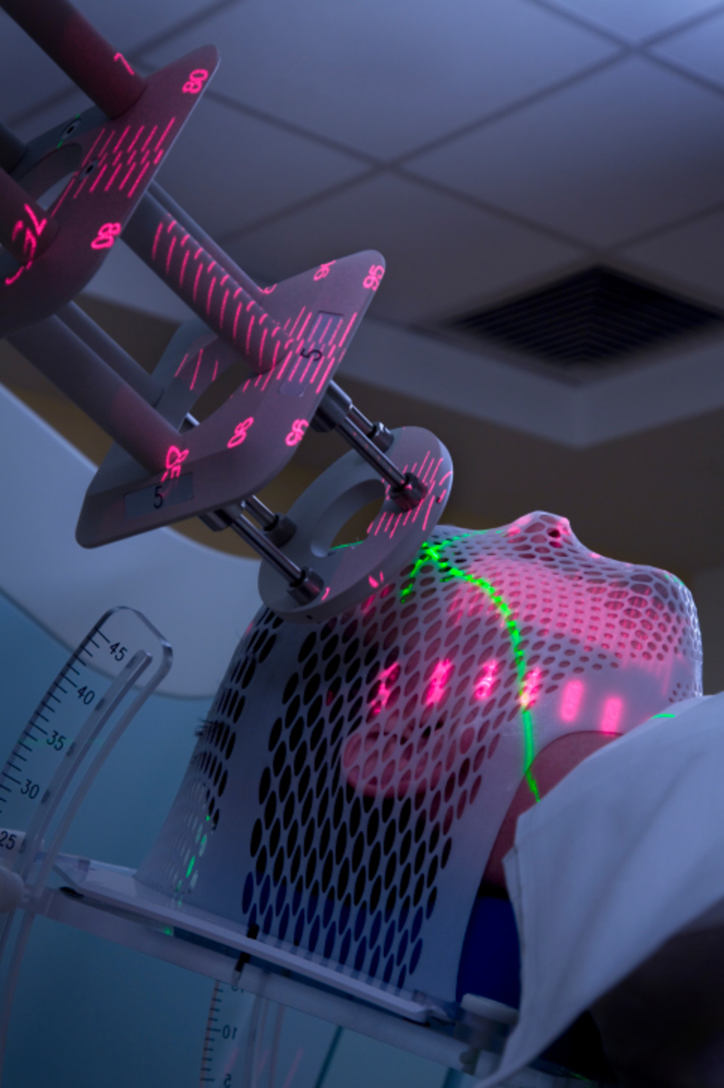 Radiation Therapy Answers On Healthtap