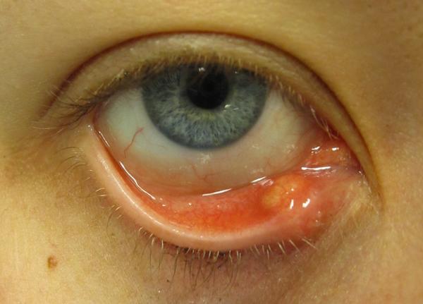 My Eyelid Eczema Ť Curing My Eyelid.