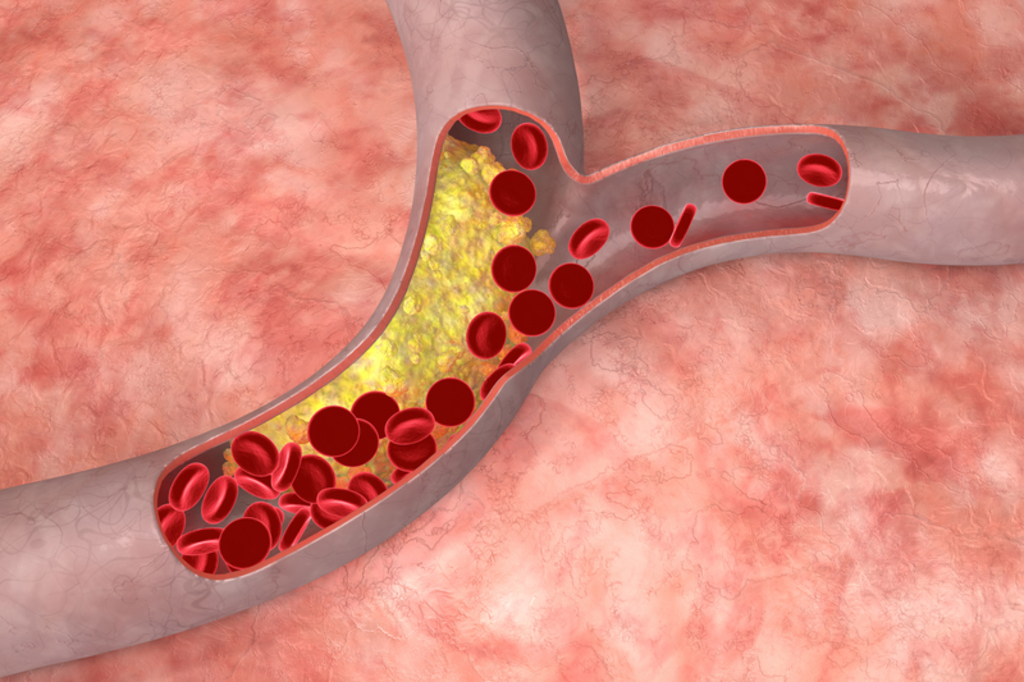 atherosclerosis a vascular disease Atherosclerosis is a narrowing of the arteries caused by a buildup of plaque it's also called arteriosclerosis or hardening of the  coronary artery disease.