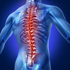 Inflammation_of_the_spinal_cord
