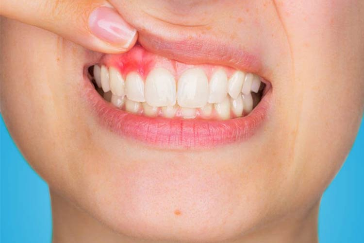7 Home Remedies for Treating Receding Gums