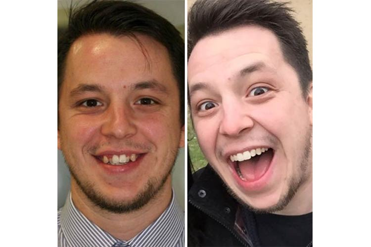 This guy is happy about his new smile, rightfully so!