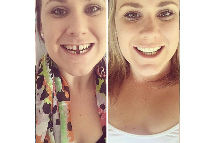 Closing the gap on the perfect smile
