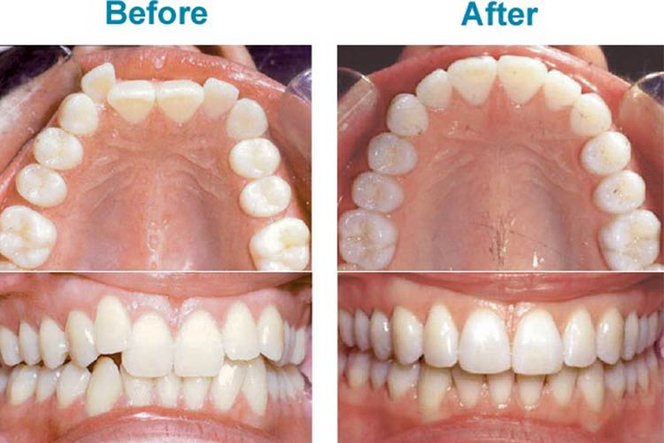 Befor and After of invisible aligners by byte