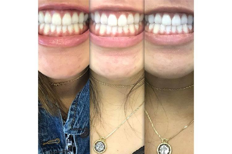 CleanerSmile LED Teeth Whitener Test