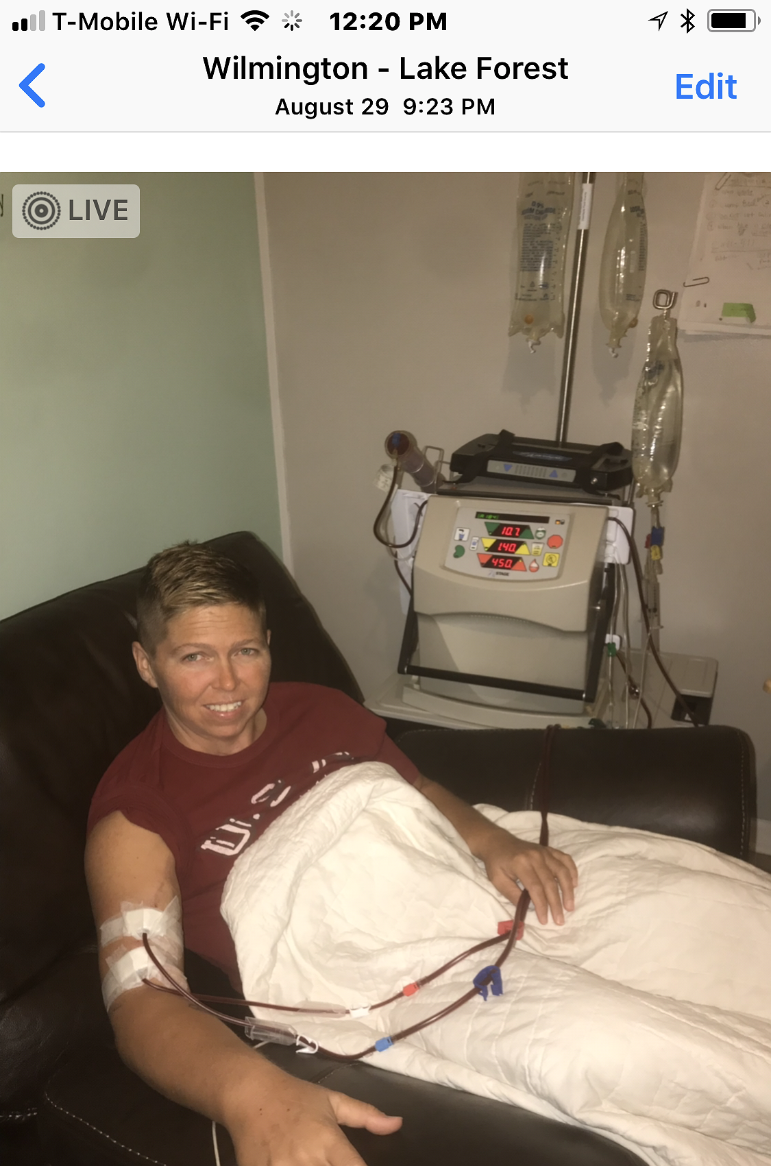 dialysis and 1st transplant