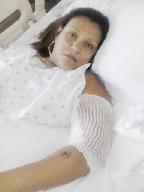 Alma begins dialysis
