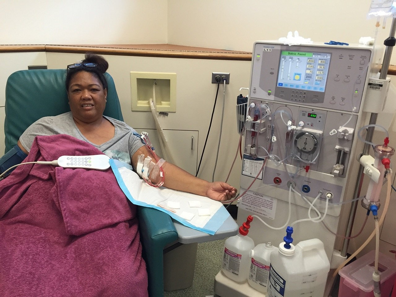 During dialysis treatments