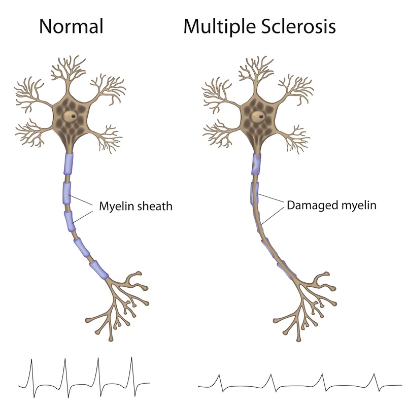 How MS damages our nerves and brain cells and how stem cell treatment repairs this damage