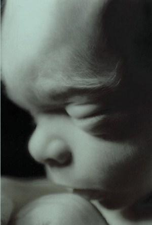 Unborn baby 300x443 bw