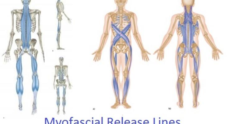 Myofascial release lines