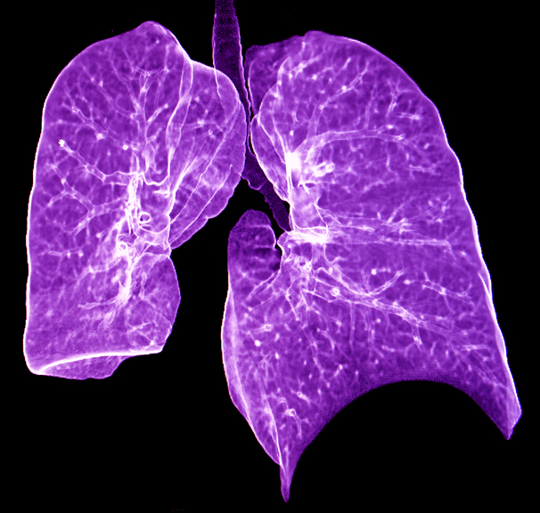Autoimmune lung disease: Early recognition and treatment helps - harvard