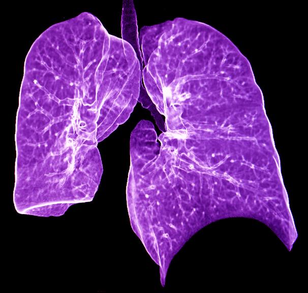 Doença pulmonar autoimune: O reconhecimento e o tratamento precoces ajudam 7