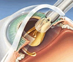 Foldable intraocular lens being inserted into eye