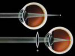 A refractive error occurs when light is no longer focused onto the retina.