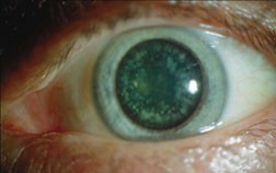Lamellar cataract in an eye