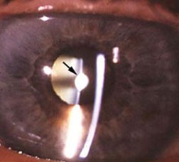 Anterior polar cataract