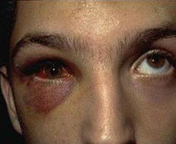 Bruising around the eye is a common symptom of a blowout fracture.