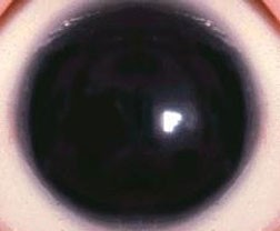 Fig. 1: Aniridia means an absence of the iris or colored part of the eye.