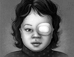 Child wearing patch for Amblyopia