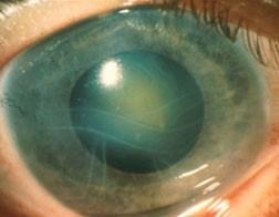 E1QtNLHDQyyspZBZbqbK__101_glaucoma2.jpg