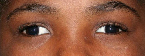 Child with Exotropia of the right eye