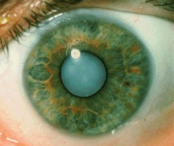 Example of the cataract condition in an eye