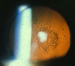 Posterior sub capsular cataract
