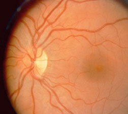 Normal optic nerve