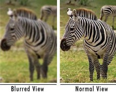 Amblyopia occurs when one eye experiences a blurred view and the other normal view, but the bran only processes the normal view.