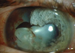 a traumatic cataract results when either a blunt or penetrating object damages the lens