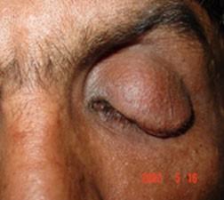 Eyelid neurofibroma
