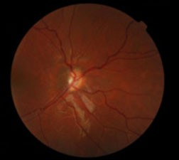 Optic nerve hypoplasia