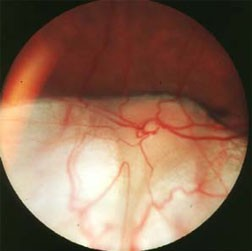 Fundus or optic nerve coloboma