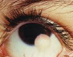 Limbal epibulbar dermoid