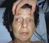 A lady with third nerve palsy