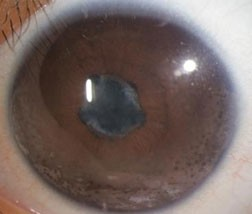 Anterior chamber imflammation associated with iritis.