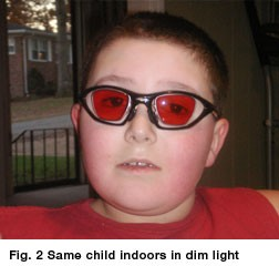 Child with Achromoatopsia Outdoor