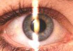 yFNUFveNQ4er6JrZxAXi__142_retinoscopy1.jpg