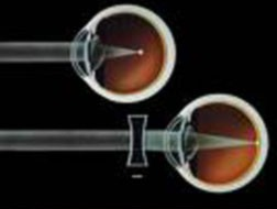In normal vision, light passes through the lens of the eye and is focused onto the retina.